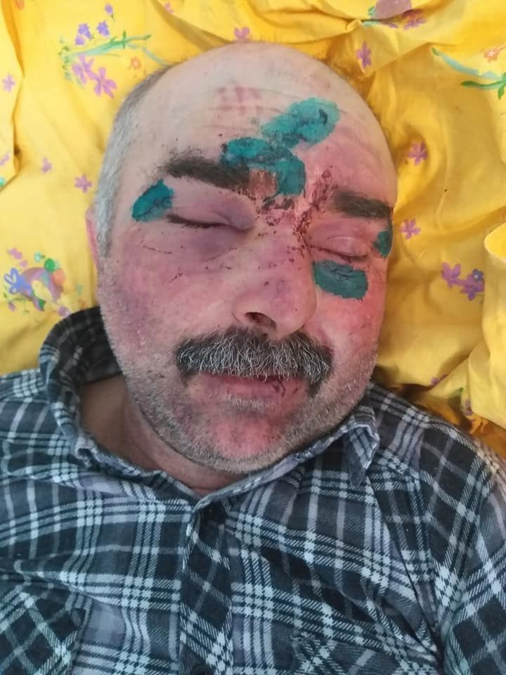 Полиция расследует факт избиения охранника сельсовета в Измаильском районе